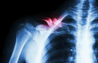 Collarbone Fracture X-Ray