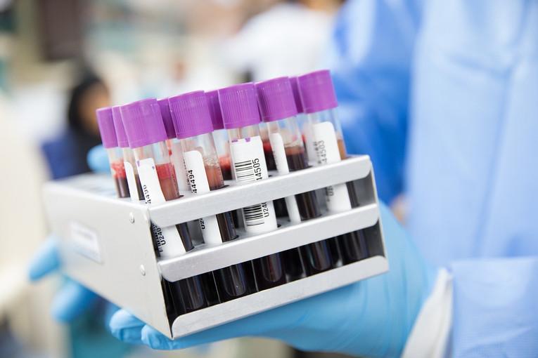 Blood Test Samples